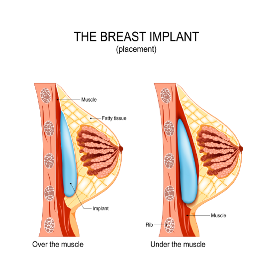 The Breast Implant