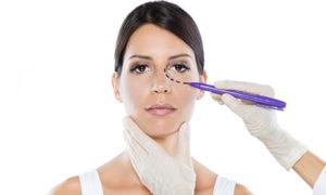 Eyelid Surgery NJ